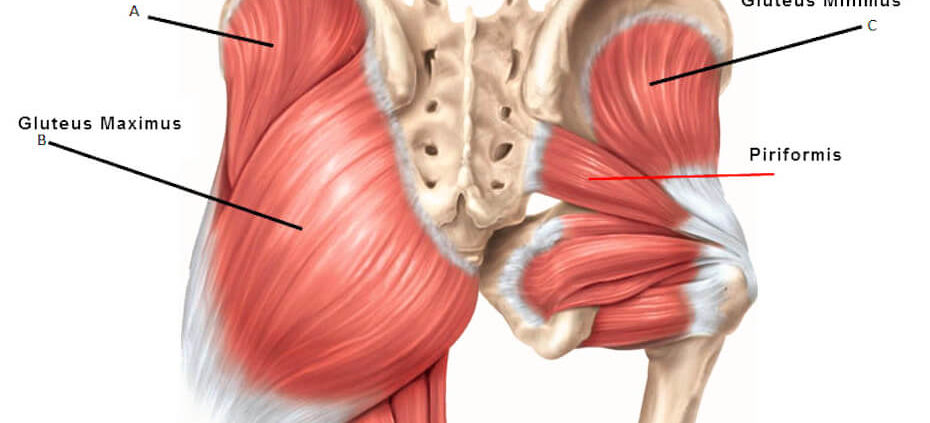 glutes piriformis syndrome sciatica